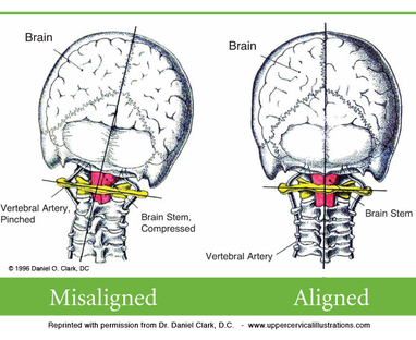Upper Neck Misalignment